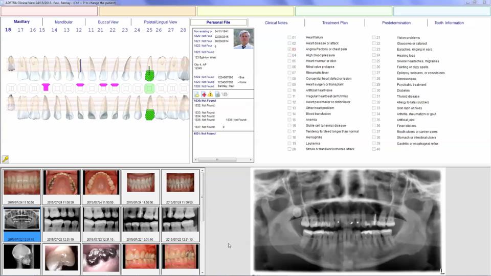 ADSTRA Dental Software Suite-pantalla-0